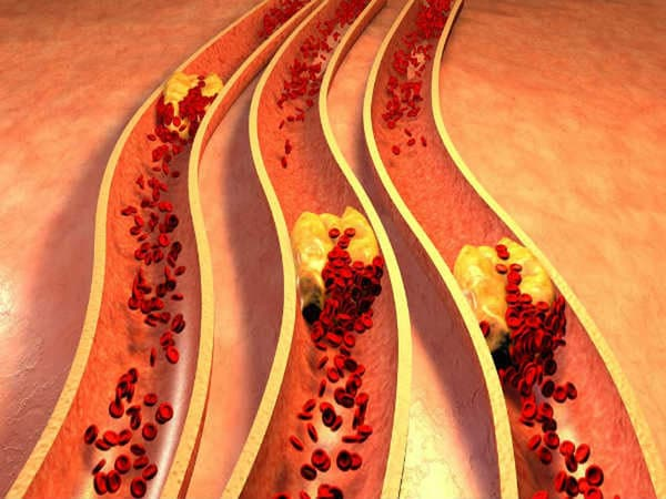 cholesterol dư thừa