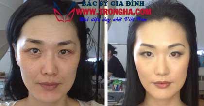 Hydroface AM/PM Anti -Wrinkle Complex
