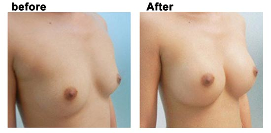 Kết quả khi sử dụng nâng ngực bằng kem upsize