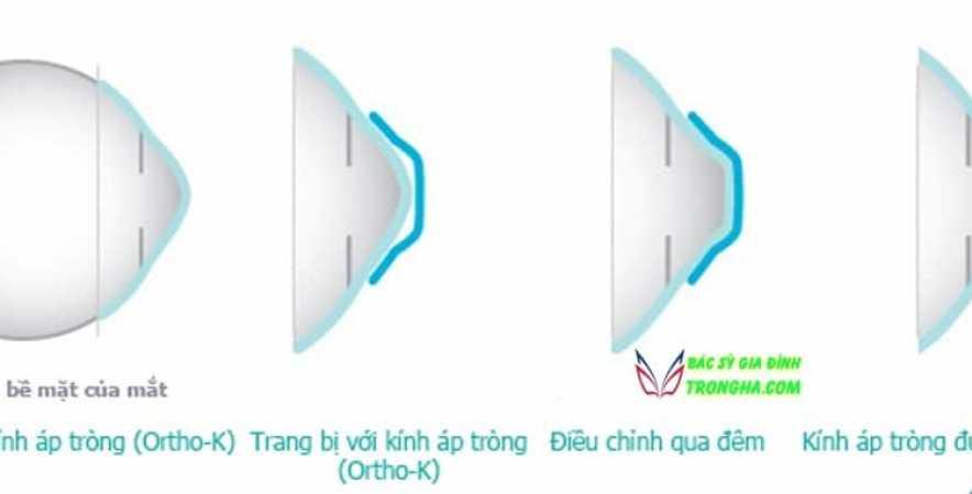 Kính áp tròng lens ortho-k