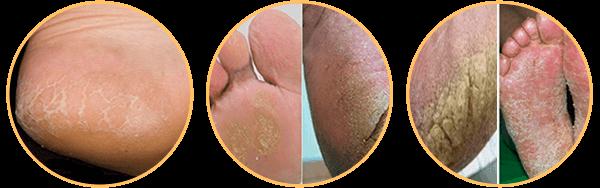 Tác hại nấm chân