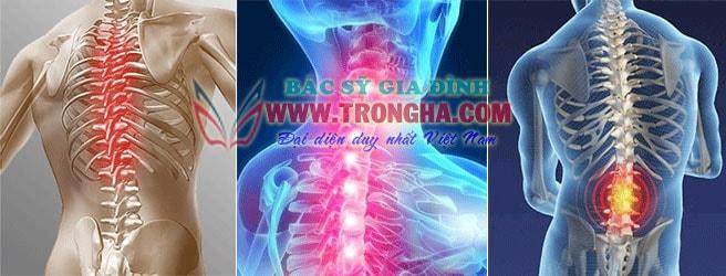 Triệu chứng hư xương sụn