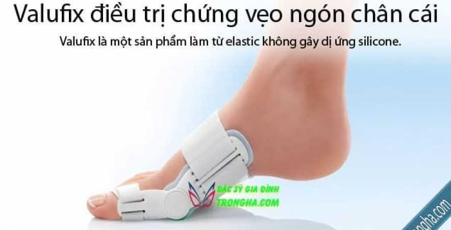 Valufix điều trị chứng vẹo ngón chân cái