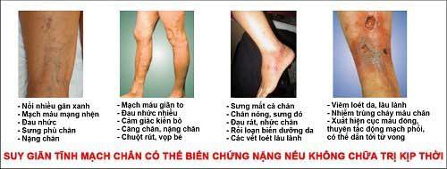 venafix biến chứng suy giãn tĩnh mạch chân